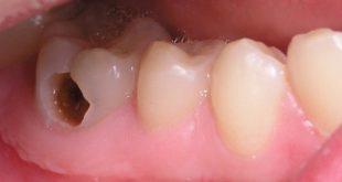 Có loại thuốc nào điều trị sâu răng không-1