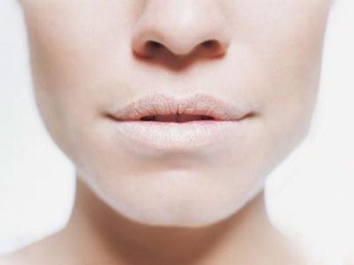 HIV/AIDS và sức khỏe răng miệng-3