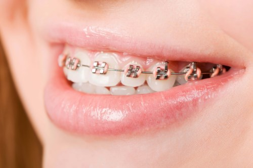 phương pháp niềng răng thì có bắt buộc nhổ răng không-1