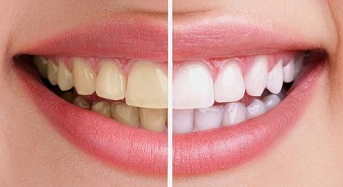 Làm thế nào để loại bỏ cao răng khỏi răng-1