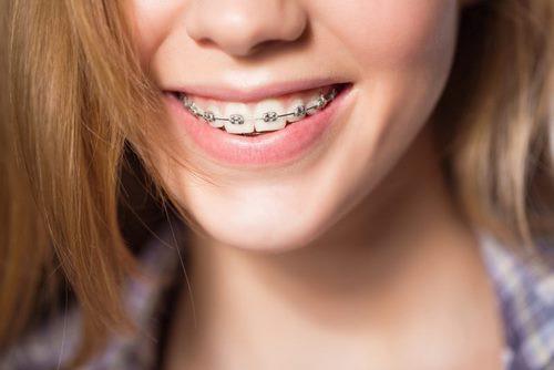 Nhổ răng có ảnh hưởng đến dây thần kinh không-2