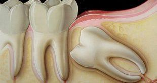 Nhổ răng có ảnh hưởng đến dây thần kinh không-1