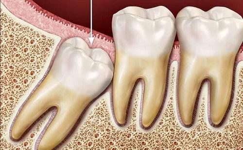 Nhổ răng khôn cần ăn kiêng những gì-2