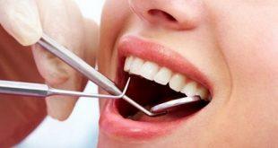 Nhổ răng khôn có được bảo hiểm y tế không-2