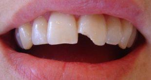 Răng bị sứt mẻ thì nên xử lý như thế nào-2