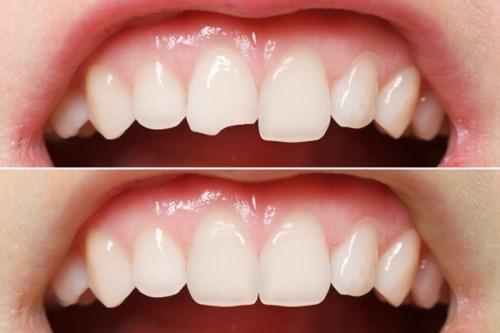 Răng bị sứt mẻ thì nên xử lý như thế nào-3