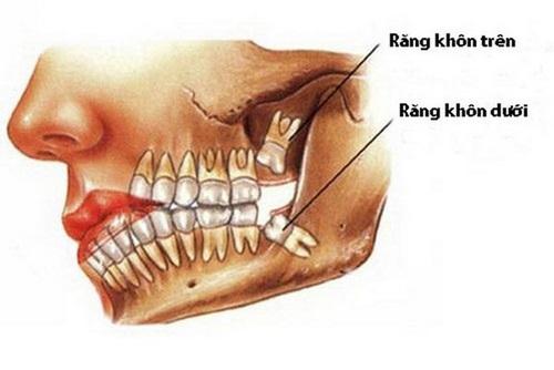 Răng mọc lệch có nên nhổ không-1