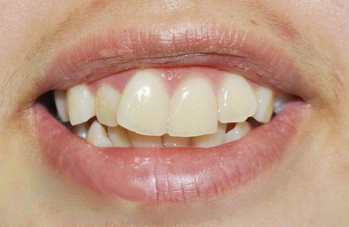 Răng mọc lệch có nên nhổ không-3
