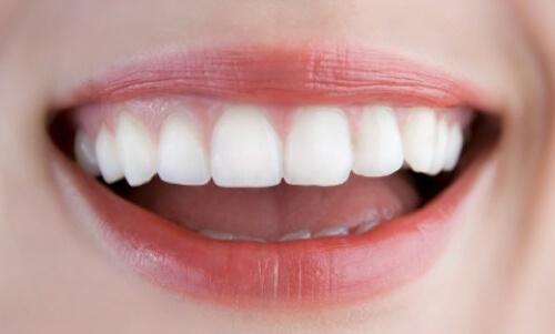 Răng mọc lệch có nên nhổ không-4