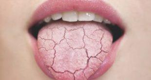 Tại sao đánh răng thường xuyên mà vân bị sâu răng-2
