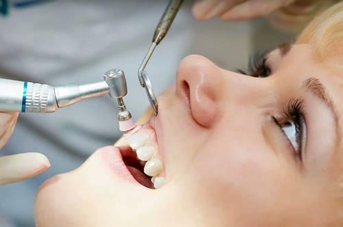 Tại sao rằng bị ê buốt sao khi lấy cao răng-3