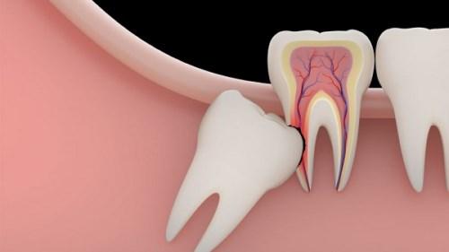 Tôi có nên nhổ răng khôn của mình không-3