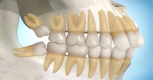 Tổng hợp các cách giảm đau sau khi nhổ răng khôn-3
