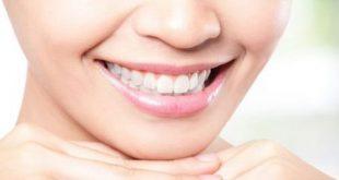 Top các loại thực phẩm giúp làm trắng răng-1