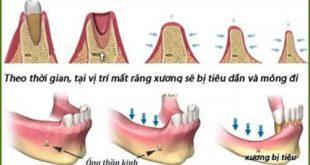 chia sẻ kinh nghiệm cấy ghép implant nha khoa-3