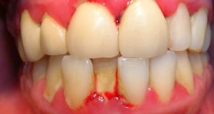 Chảy máu chân răng là thiếu vitamin gì