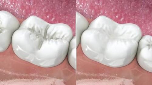 sâu răng có tự khỏi được không 4
