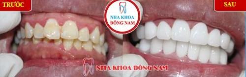 sâu răng có tự khỏi được không 6