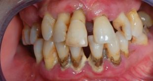 Nguy cơ mất răng vì viêm nha chu