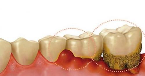 Nguy cơ mất răng vì viêm nha chu 3