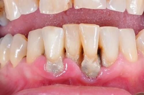 Nguy cơ mất răng vì viêm nha chu 5