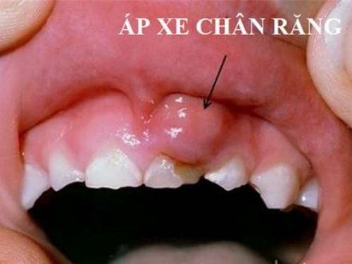 Nguy cơ mất răng vì viêm nha chu 6