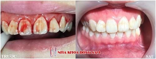 Nguy cơ mất răng vì viêm nha chu 8