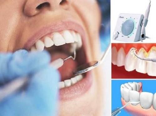 Nguy cơ mất răng vì viêm nha chu 9