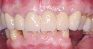 Cảm nhận khách hàng Hậu quả mất răng mất luôn cả lợi