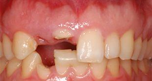 Nên trồng răng Implant nếu bạn có thể -1