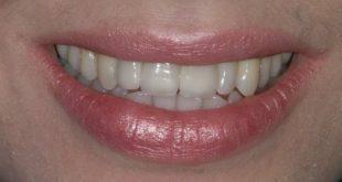 Quá trình trồng răng implant từ người trong cuộc
