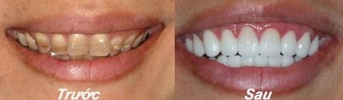 Quy trình trám răng đạt chuẩn hiện nay 11