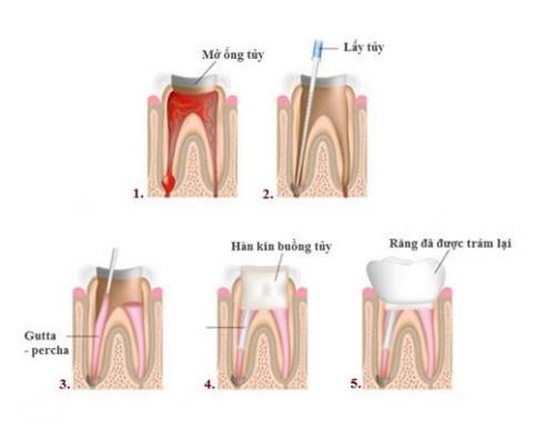 Quy trình trám răng đạt chuẩn hiện nay 2