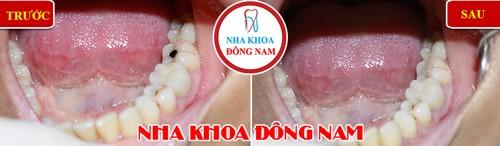 Quy trình trám răng đạt chuẩn hiện nay 4