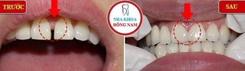 Quy trình trám răng đạt chuẩn hiện nay 5