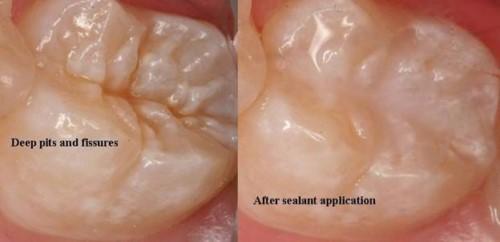 Quy trình trám răng đạt chuẩn hiện nay 6