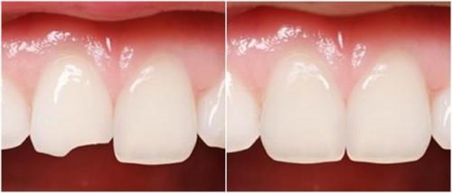 Quy trình trám răng đạt chuẩn hiện nay 9