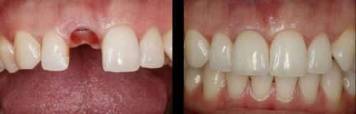 Kinh nghiệm lựa chọn nha khoa nhổ răng và trồng răng implant cùng lúc