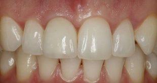 Kinh nghiệm lựa chọn nha khoa nhổ răng và trồng răng implant cùng lúc3