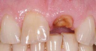 Những điều cần biết trước khi trồng răng Implant