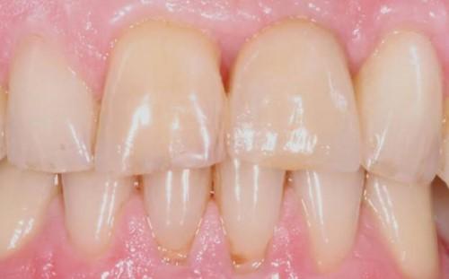 Những điều cần biết trước khi trồng răng Implant 2