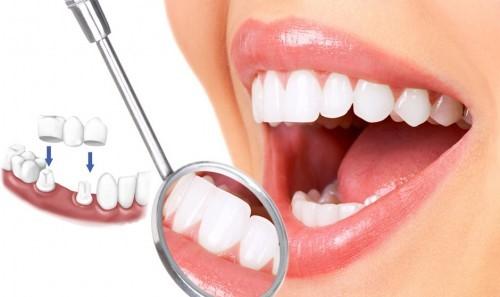 Làm sao để trồng răng hiệu quả