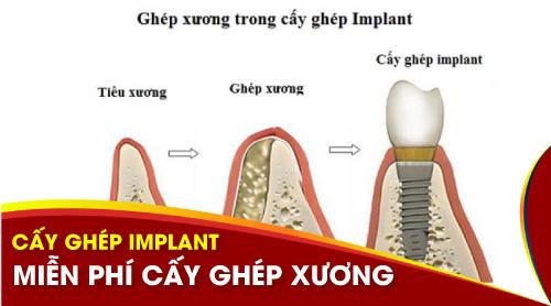 Miễn phí cấy ghép xương khi trồng răng implant 1
