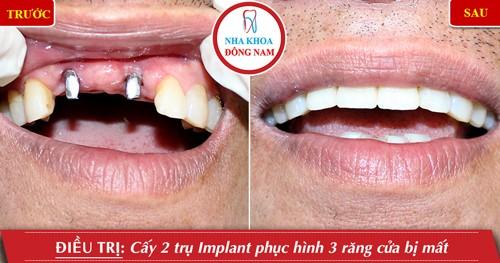 Miễn phí cấy ghép xương khi trồng răng implant 3