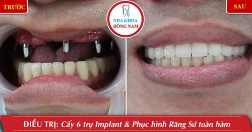 Miễn phí cấy ghép xương khi trồng răng implant 4