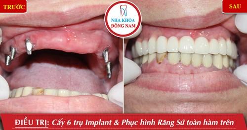 Miễn phí cấy ghép xương khi trồng răng implant 5