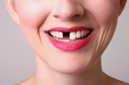 Những lời khuyên khác nhau về trồng răng giả