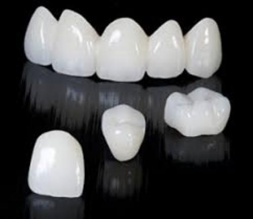 Răng sứ kim loại được cấu tạo như thế nào?