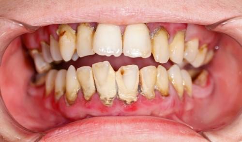 sau khi lấy vôi răng nên kiên gì