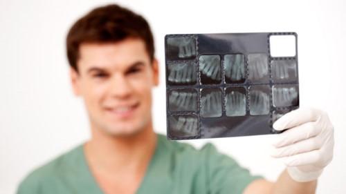 Tia X-quang có thật sự an toàn cho răng không?